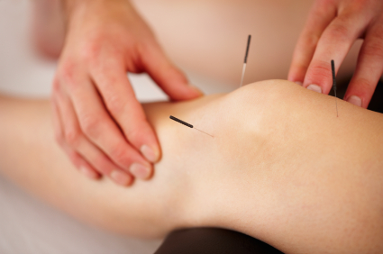 Dry Needling. Bea Massage Therapy.