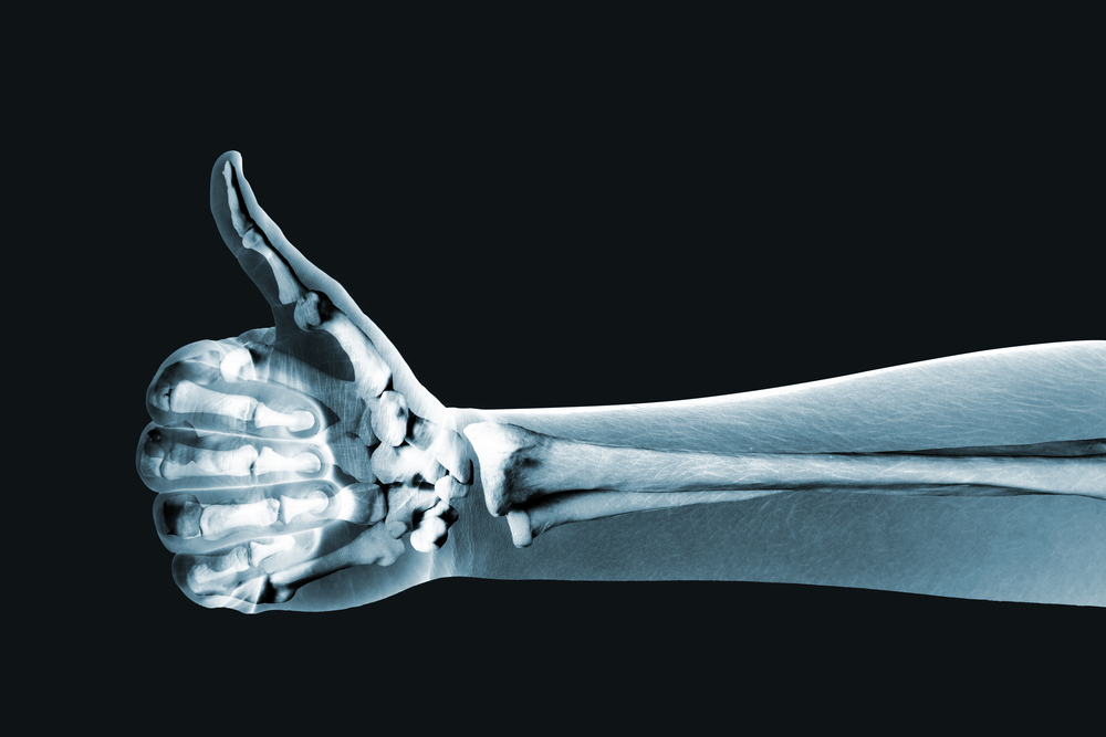 How Exercise Improves Bone Health
